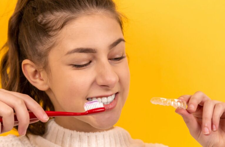 What are the Consequences of Not Cleaning a Dental Retainer?